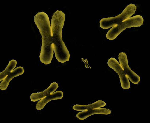chromosomes-sex-linked-genetic-disorders