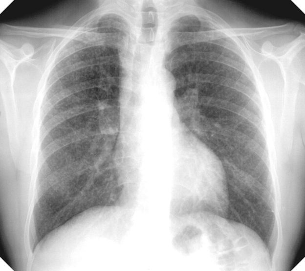 simple silicosis x-ray