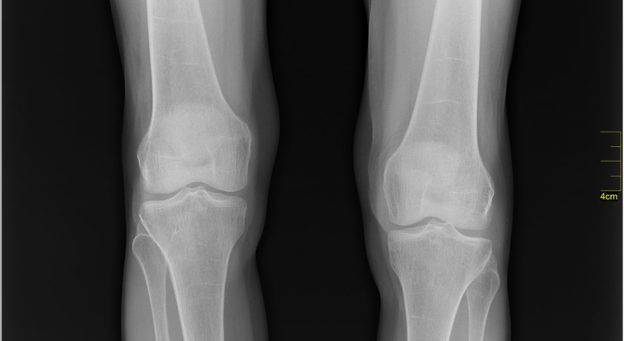 knees on x-ray