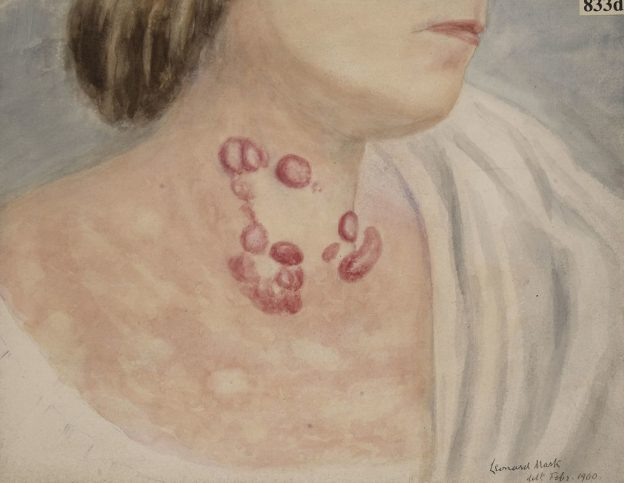 neck of a woman suffering from mycosis fungoides of the skin