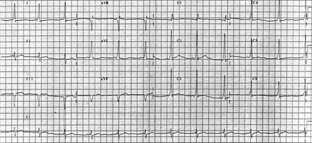 12 lead EKG demonstrating Wolff-Parkinson-White syndrome