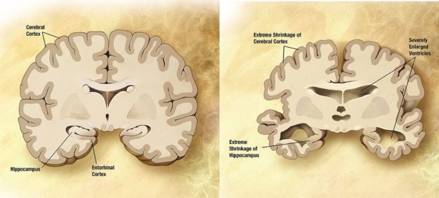 alzheimers disease brain comparison