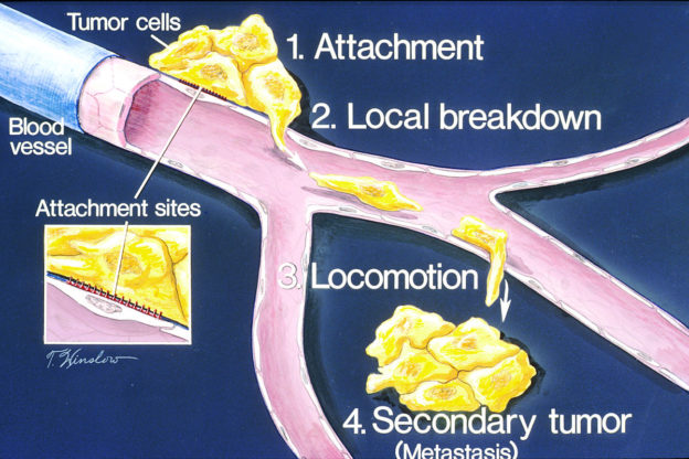 how metastasis occurs illustration