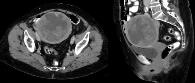 uterine leiomyosarcoma