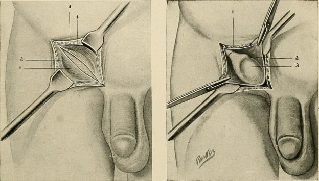 surgery undescended testicle