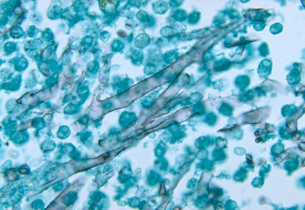 Zygomycosis caused by mucor pusillus
