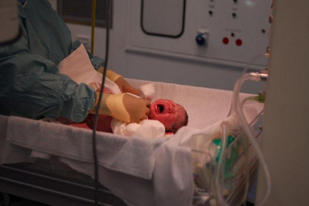 baby-in-hospital-necrotizing-enterocolitis