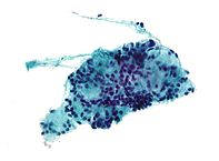 Micrograph of adenoid cystic carcinoma. Pap stain.