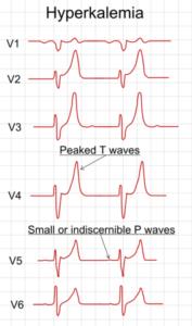 ECG_in_hyperkalemia