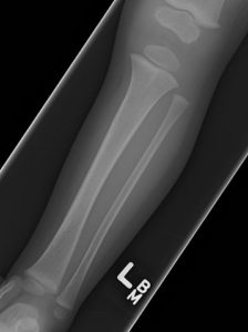 Pediatric-Tibial-Fracture