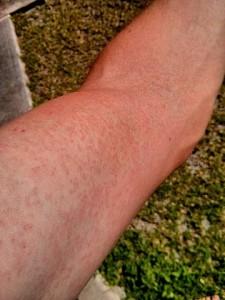 Rash on an arm due to Zika virus