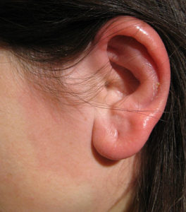 Erysipelas ear