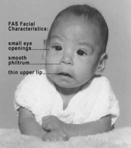photo of baby with fas (fetal alcohol syndrome)