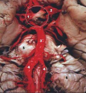 Human base of brain blood supply