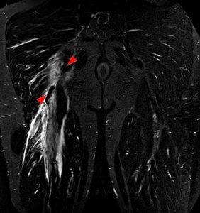Hamstring tear lower limb anatomy
