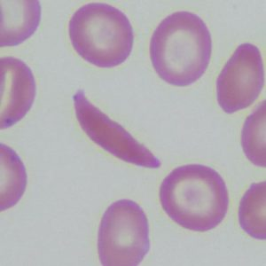 red blood cells in sickle cell disease