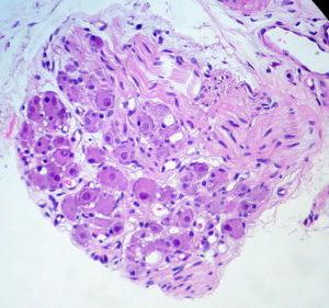 Parasympathetic Ganglion nerve tissue