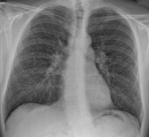 Chest-X-ray-of-sarcoidosis-nodules-SIADH