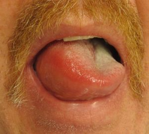 Angioedema of the tongue