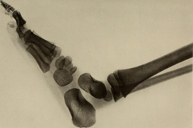 Foot and ankle of normal 5-year-old