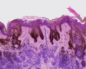 histopathology of solar lentigo