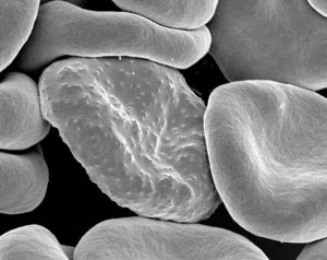 red blood cells infected with malaria