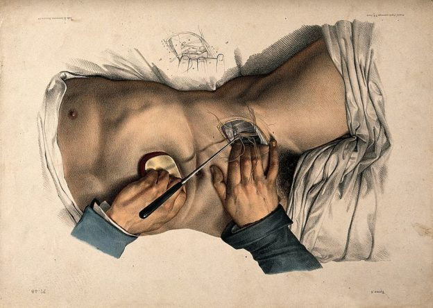 An operation being performed on the lower abdomen of a male