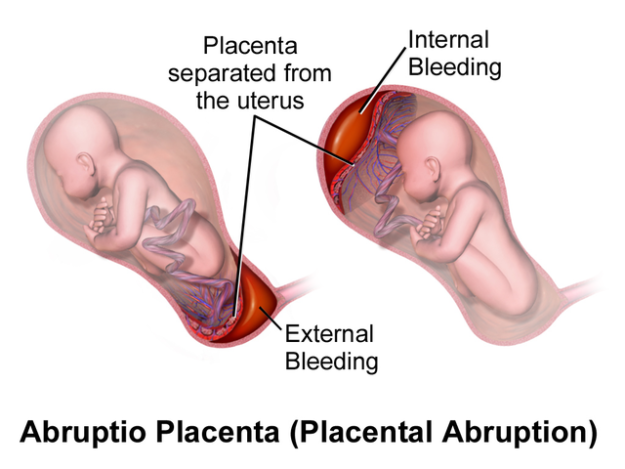 Placental Abruption.