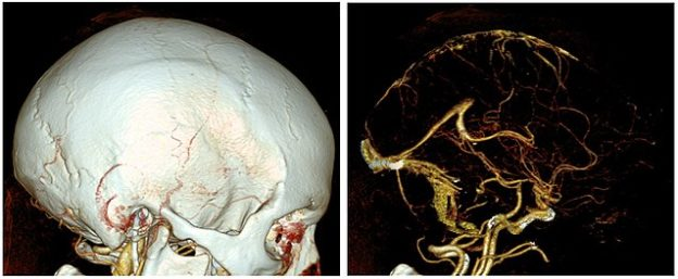 CT-angiography-of-the-head-without-and-with-bone-removal