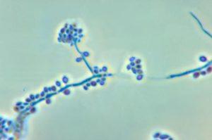 conidiophores and conidia of the fungus sporothrix schenckii