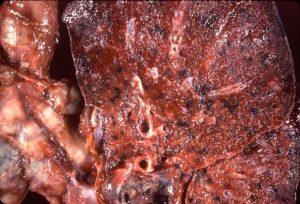cryptococcosis gross pathology