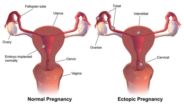 Ectopic Pregnancy dysfunctional bleeding