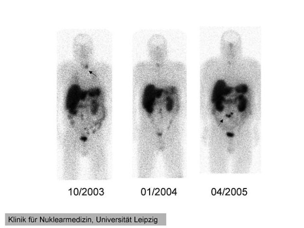 111In-pentetreotide scintigraphy of a 41 year-old man with ectopic Cushing' syndrome caused by a neuroendocrine carcinoma of the mesentery.