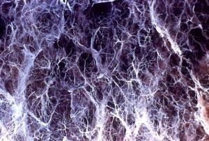 Panlobular-emphysema-hyperinflated-lungs