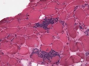 Polymyositis HE