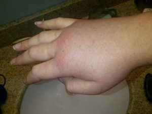 Swollen hand during a hereditary angioedema attack