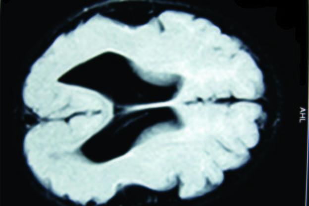 Lissencephaly MRI scan