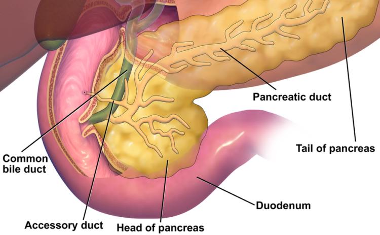 Endo K Et Al Pancreatic Arteriovenous Malformation A Pancreas
