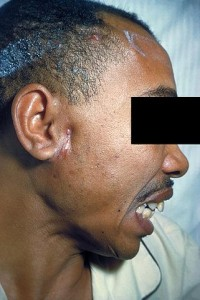 A patient with actinomycosis
