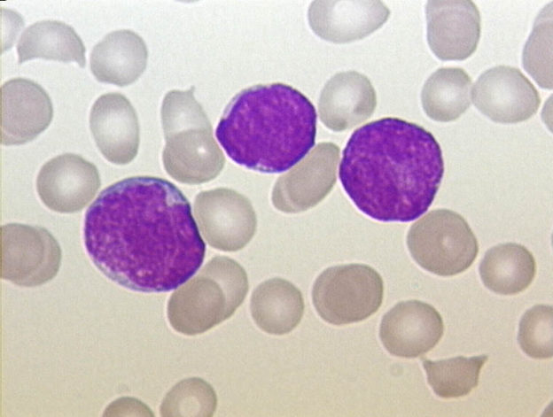 ALL Peripheral Blood