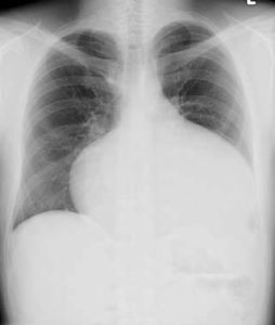 atrial septal defect chest x-ray