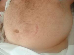 Abdominal Stretch marks