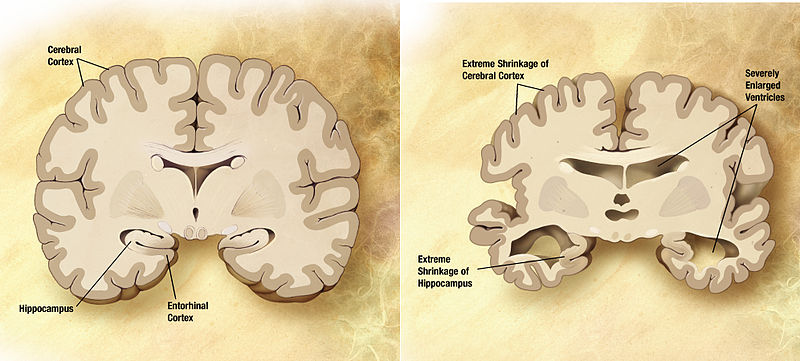 Left: healthy brain; right: brain with alzheimer
