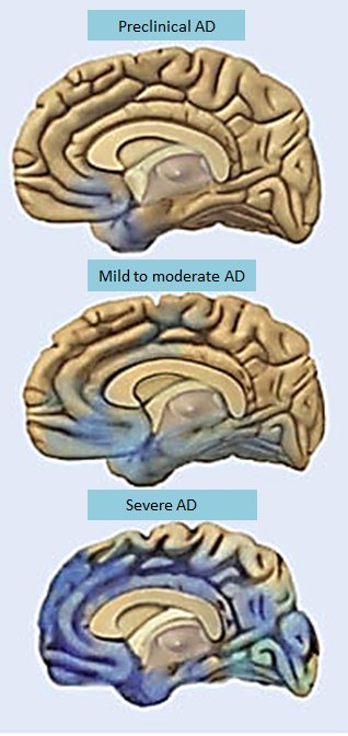 dementia: alzheimers disease and brain changes essay Frequently asked questions regarding alzheimer' s disease presentd by   alzheimer's disease is a progressive and irreversible brain disorder that is   adverse drug reactions, metabolic changes, and nutritional deficiencies.