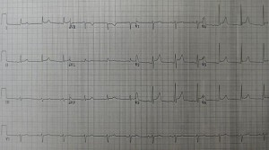 An ECG showing pericarditis