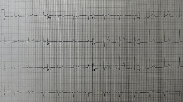 An ECG showing pericarditis