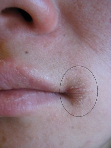 Angular cheilitis as marked by the oval