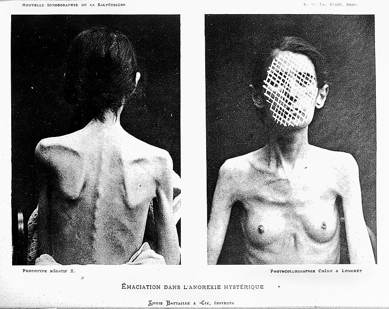 Anorexic emaciation in a hysteric General Collections Keywords