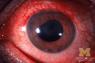 "Image: ""Anterior uveitis"" by Jonathan Trobe. License: CC BY 3.0"