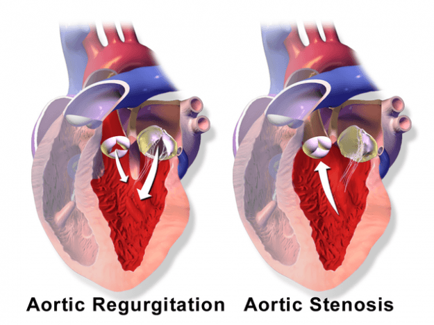 Aortic Valve Regurgitation vs. Aortic Valve Stenosis
